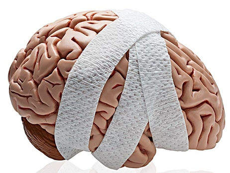 Recovering From a Concussion? Take it Slow